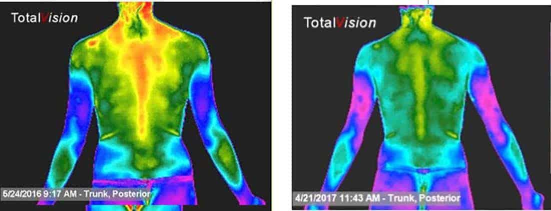 full-body-scan-1