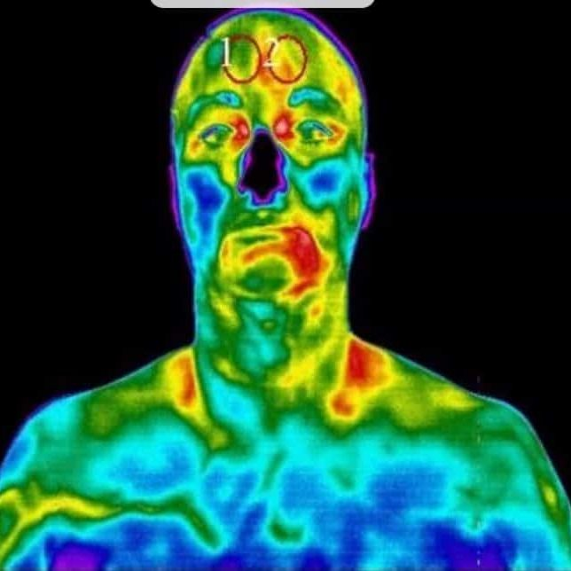 medical-thermography-7